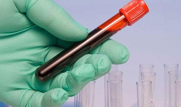Tanke zalihe pojedinih krvnih grupa, poziv dobrovoljnim davaocima da pomognu