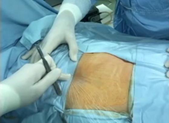 U KC Kragujevac PRVI PUT U REGIONU urađena operacija tumora plućnog krila na potpuno nov način